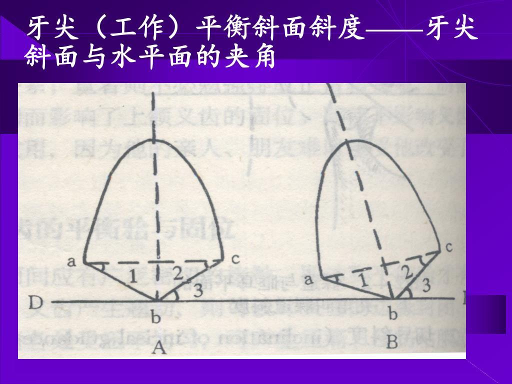牙尖(工作)平衡斜面斜度