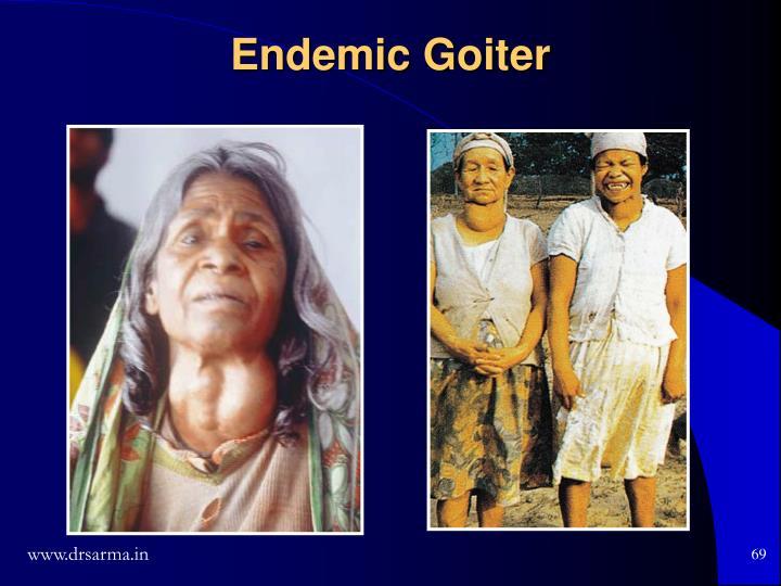 Endemic Goiter