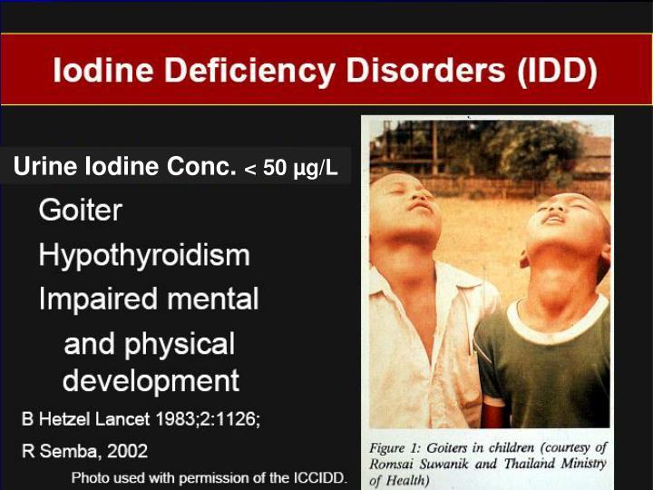 Urine Iodine Conc.