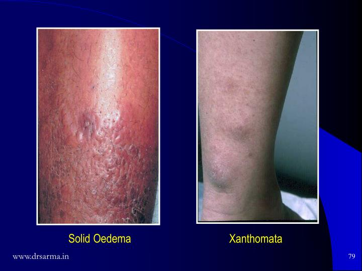Solid Oedema