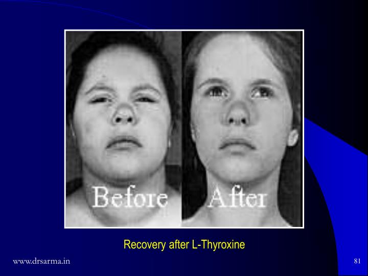 Recovery after L-Thyroxine