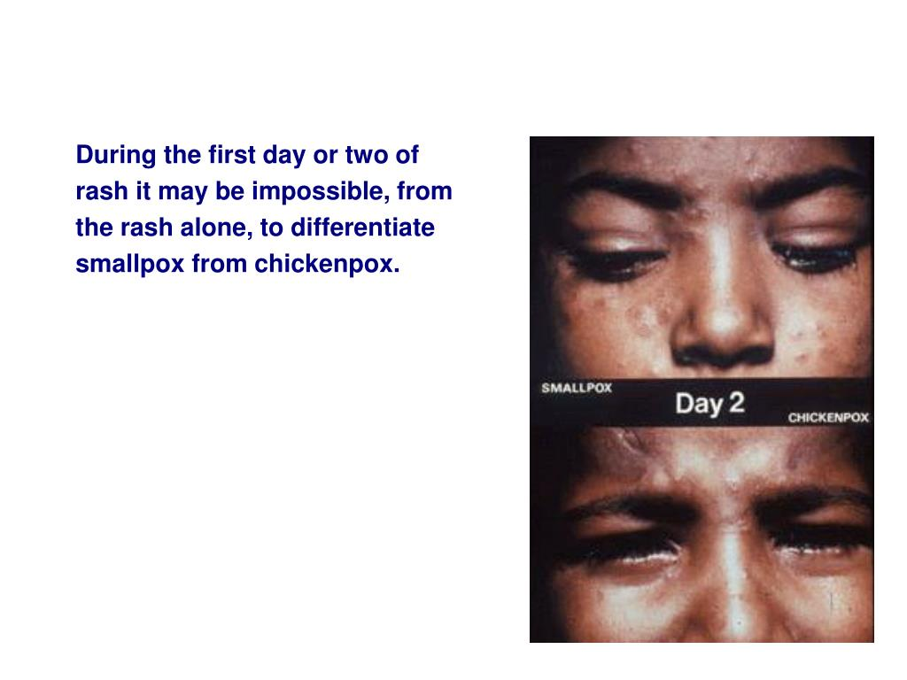 During the first day or two of rash it may be impossible, from the rash alone, to differentiate smallpox from chickenpox.