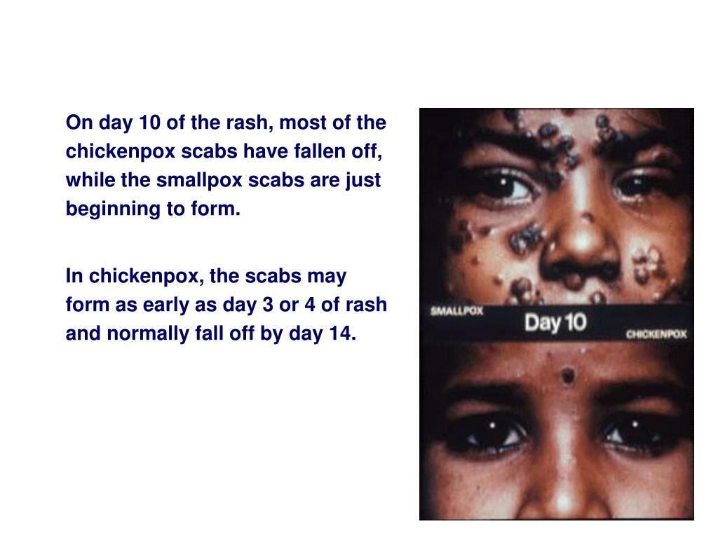 On day 10 of the rash, most of the chickenpox scabs have fallen off, while the smallpox scabs are just beginning to form.