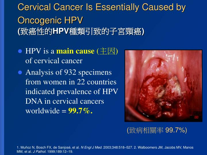 Cervical cancer is essentially caused by oncogenic hpv hpv