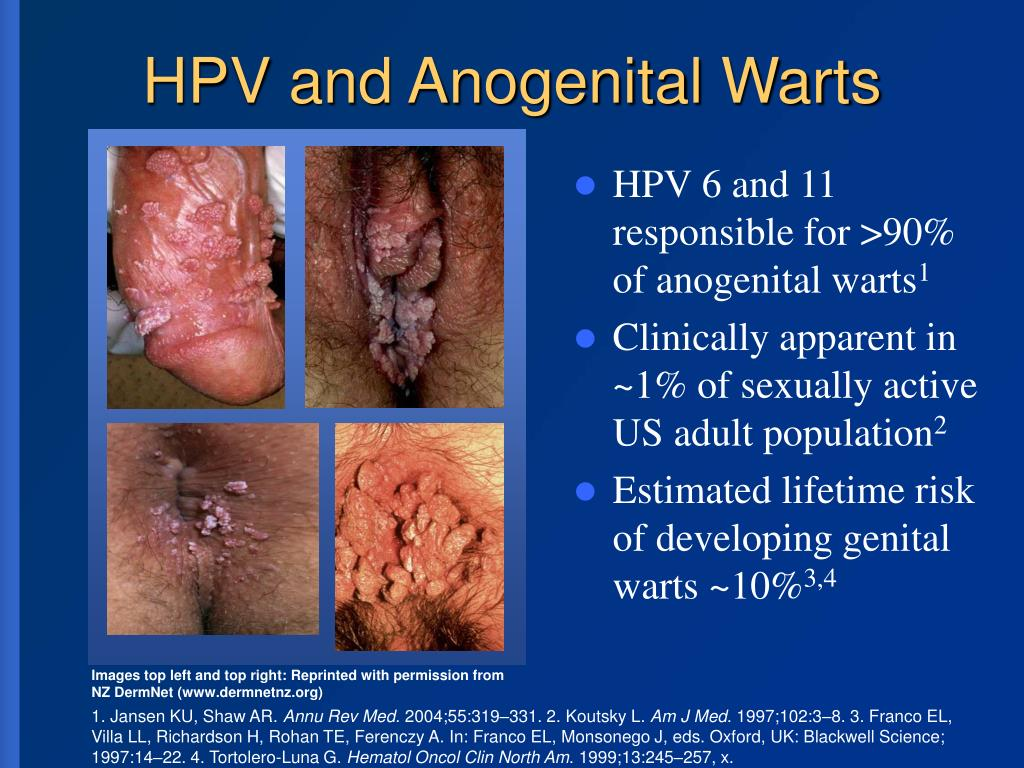 HPV and Anogenital Warts