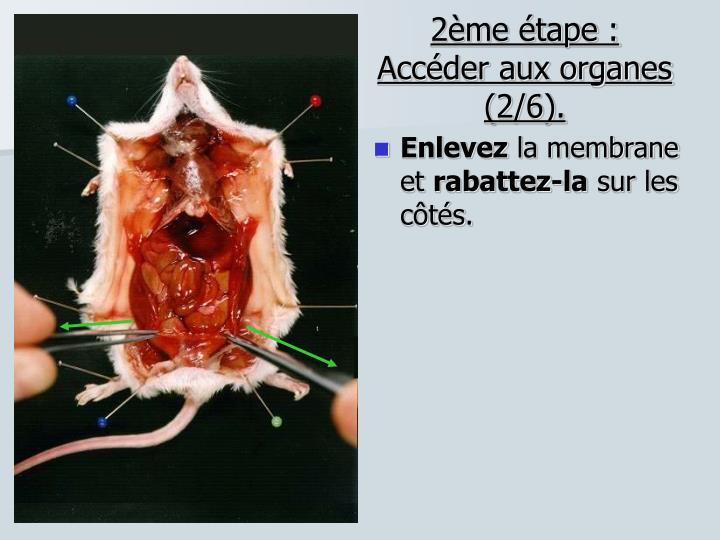2ème étape : Accéder aux organes (2/6).