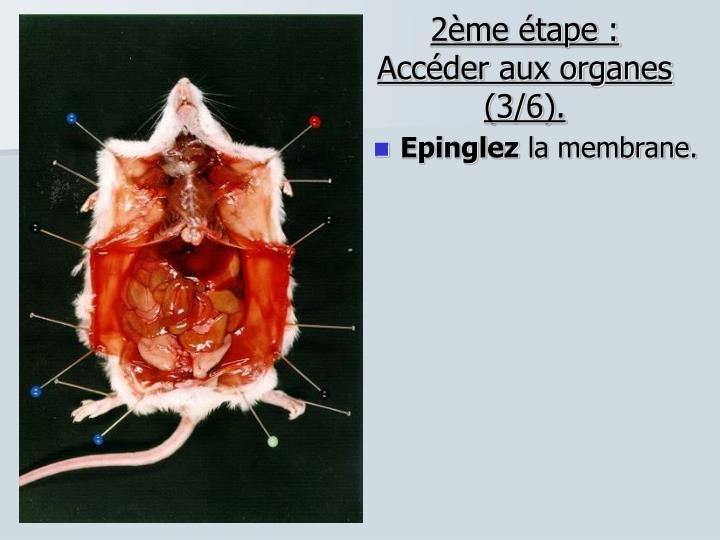 2ème étape : Accéder aux organes (3/6).