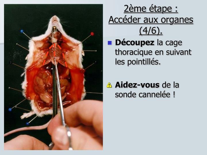 2ème étape : Accéder aux organes (4/6).