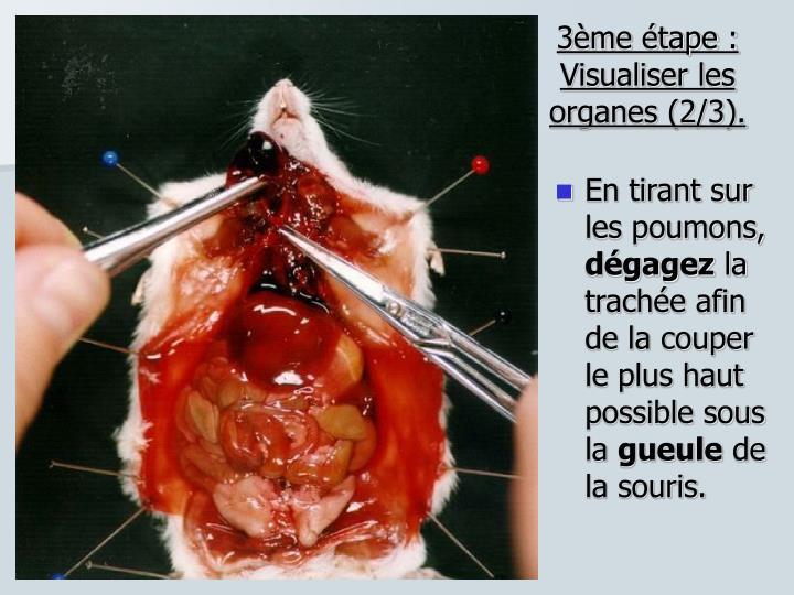 3ème étape : Visualiser les organes (2/3).