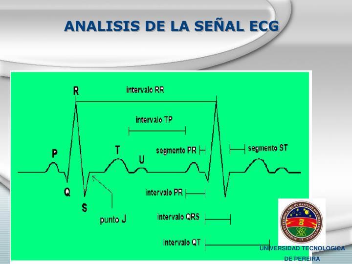 ANALISIS DE LA SEÑAL ECG