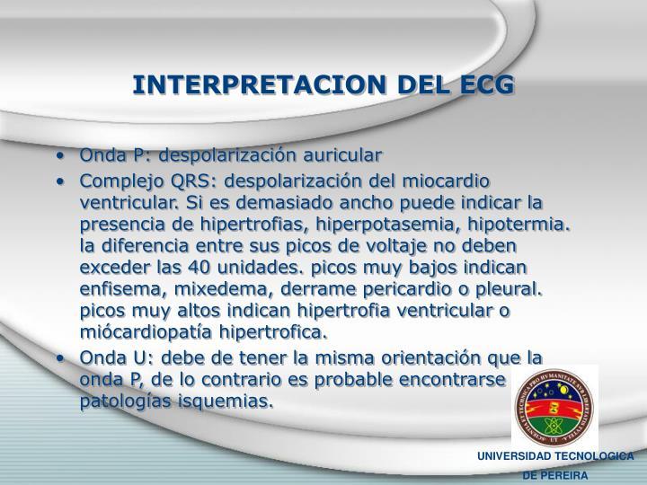 INTERPRETACION DEL ECG