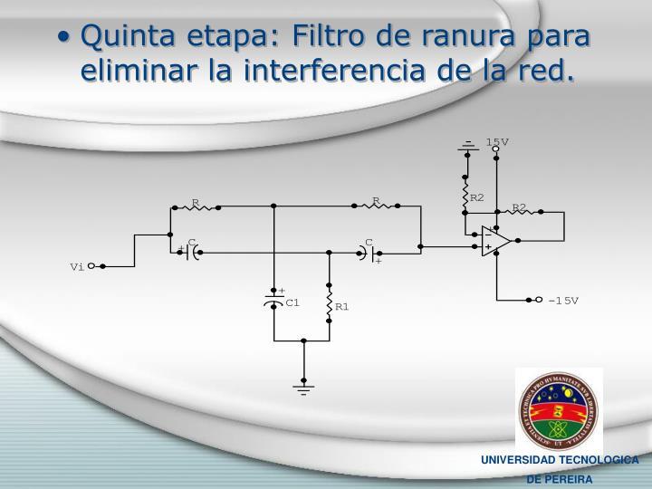 Quinta etapa: Filtro de ranura para eliminar la interferencia de la red.