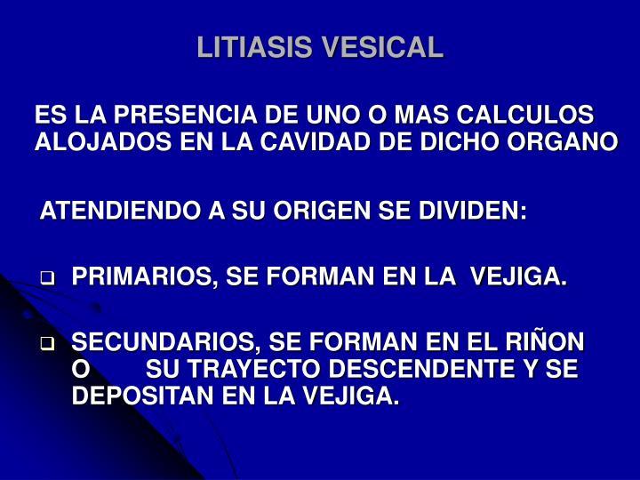 LITIASIS VESICAL