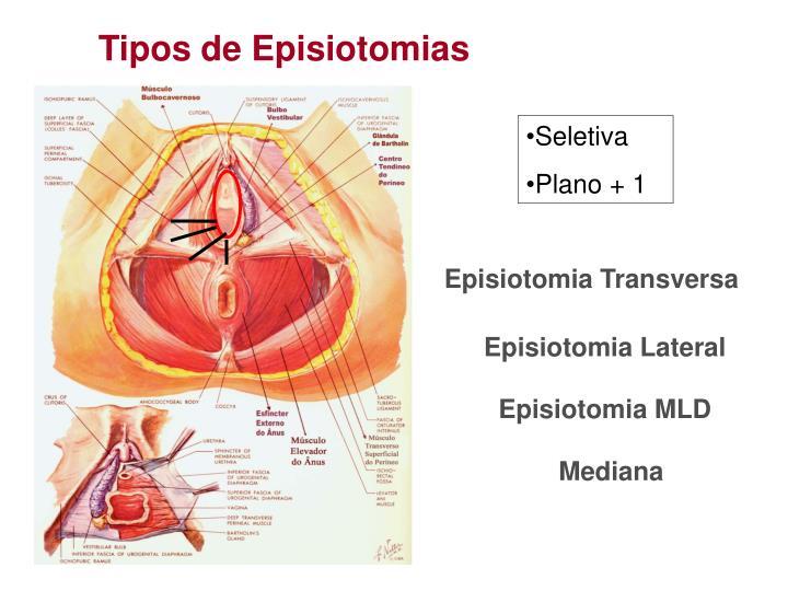Tipos de Episiotomias