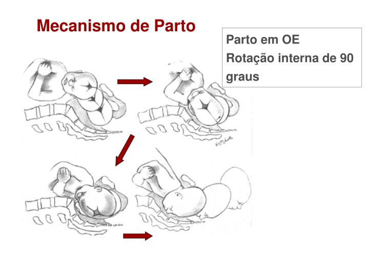 Mecanismo de Parto