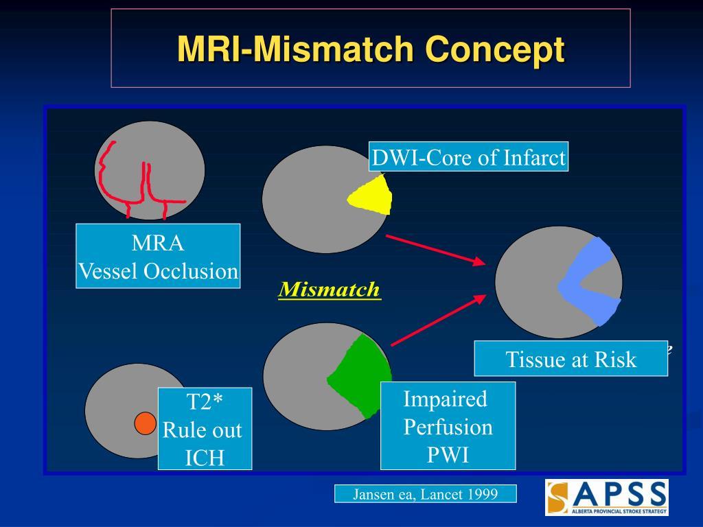 MRI-Mismatch Concept