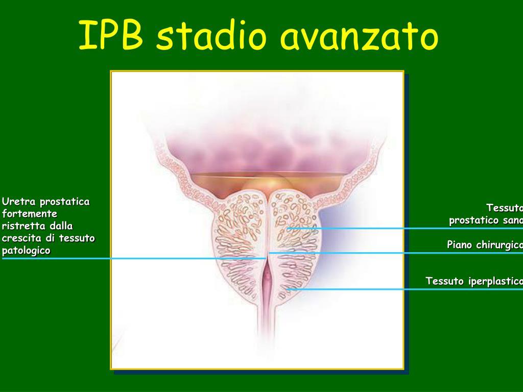 IPB stadio avanzato