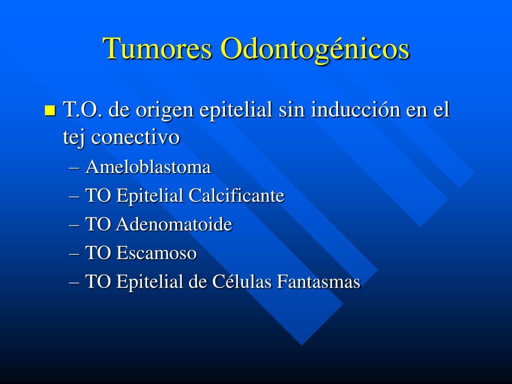 Tumores Odontogénicos