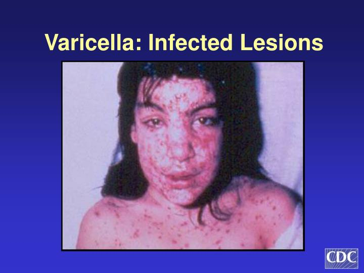 Varicella: Infected Lesions