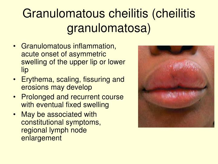 Granulomatous inflammation, acute onset of asymmetric swelling of the upper lip or lower lip