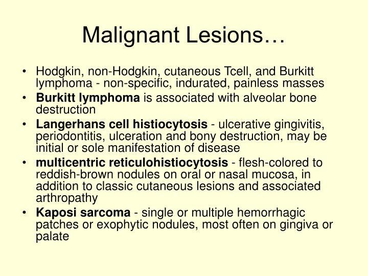 Malignant Lesions…