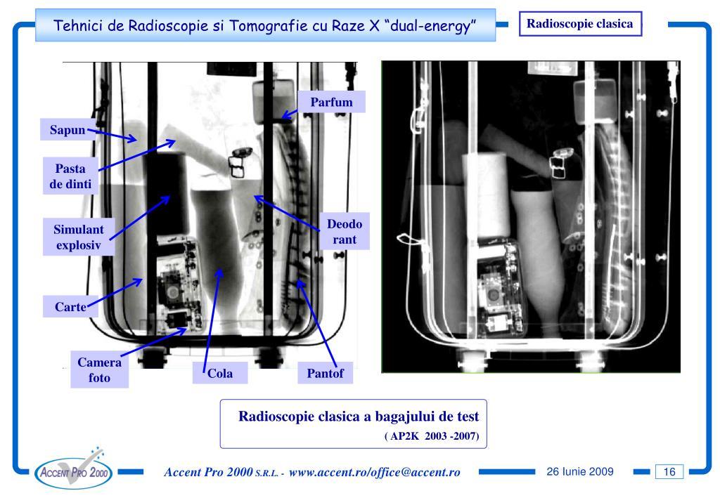 Radioscopie clasica