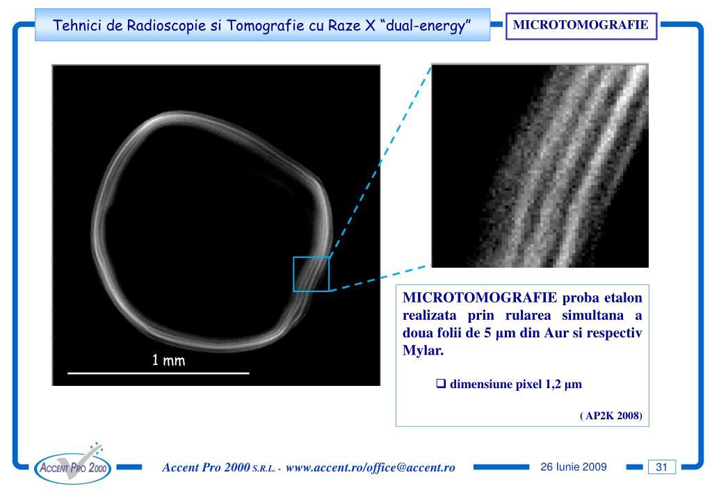 MICROTOMOGRAFIE