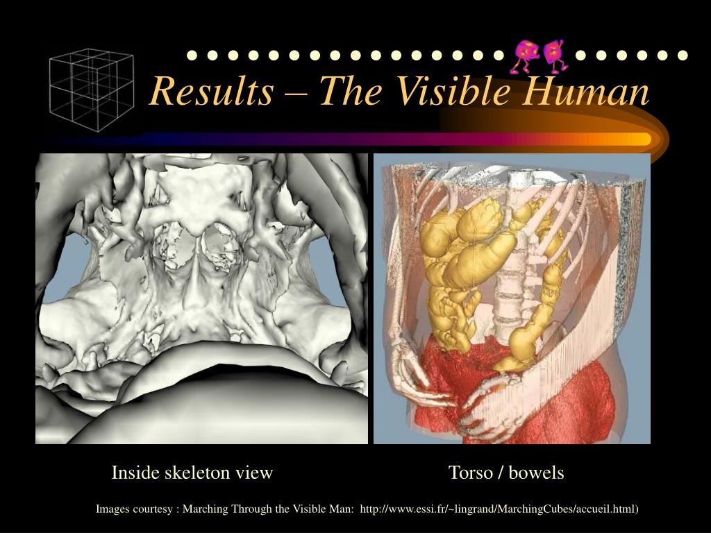 Results – The Visible Human
