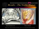 results the visible human