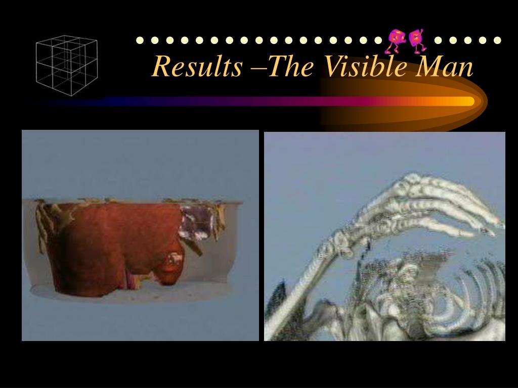 Results –The Visible Man