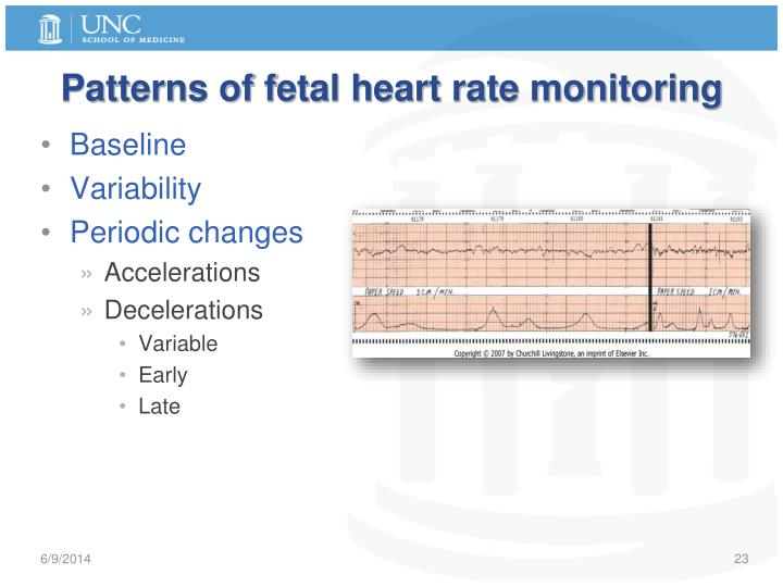 Patterns of fetal heart rate monitoring
