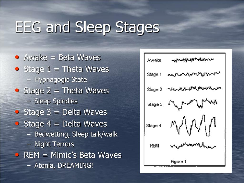 EEG and Sleep Stages