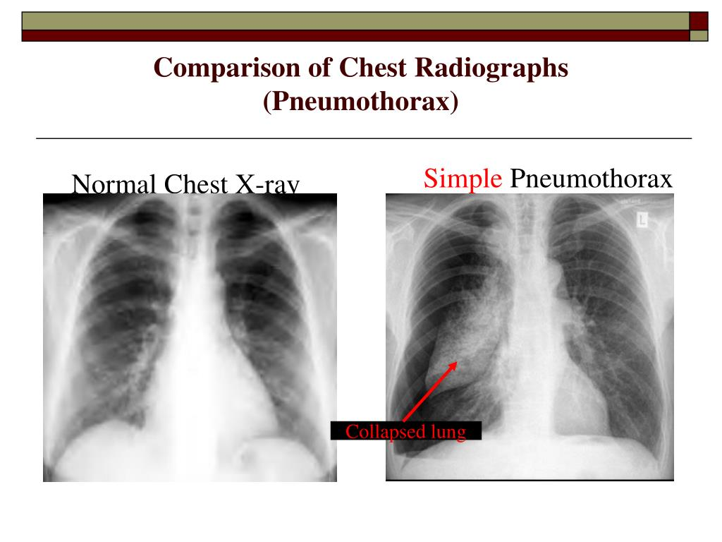 Normal Chest X-ray