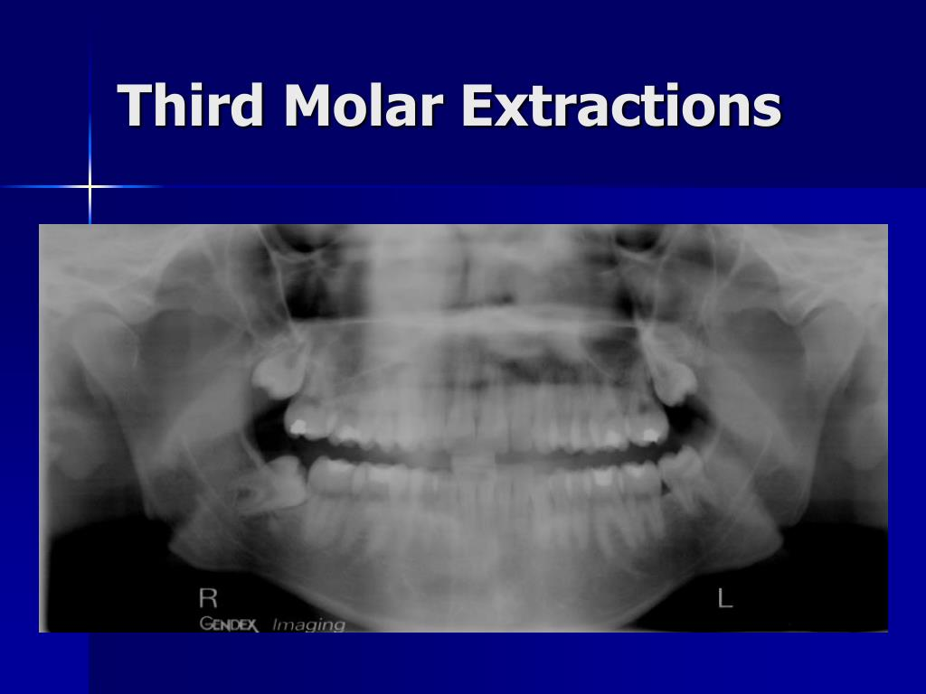 Third Molar Extractions