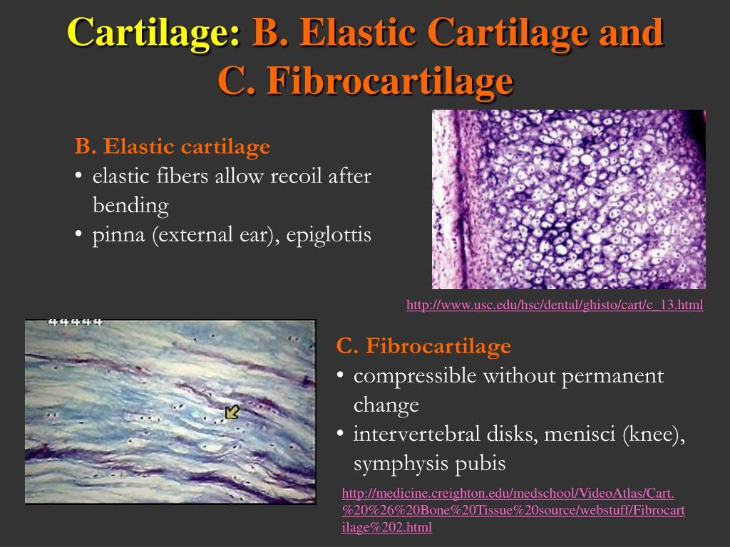 B. Elastic cartilage