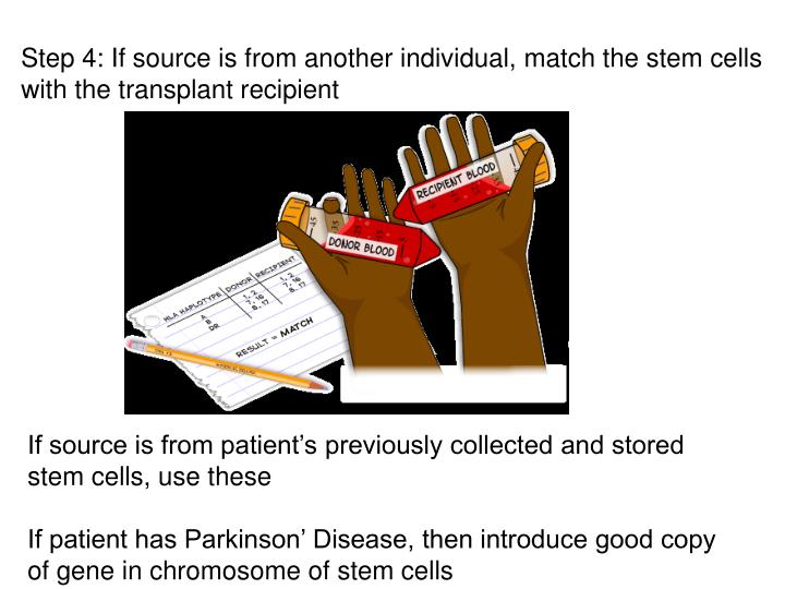 Step 4: If source is from another individual, match the stem cells with the transplant recipient