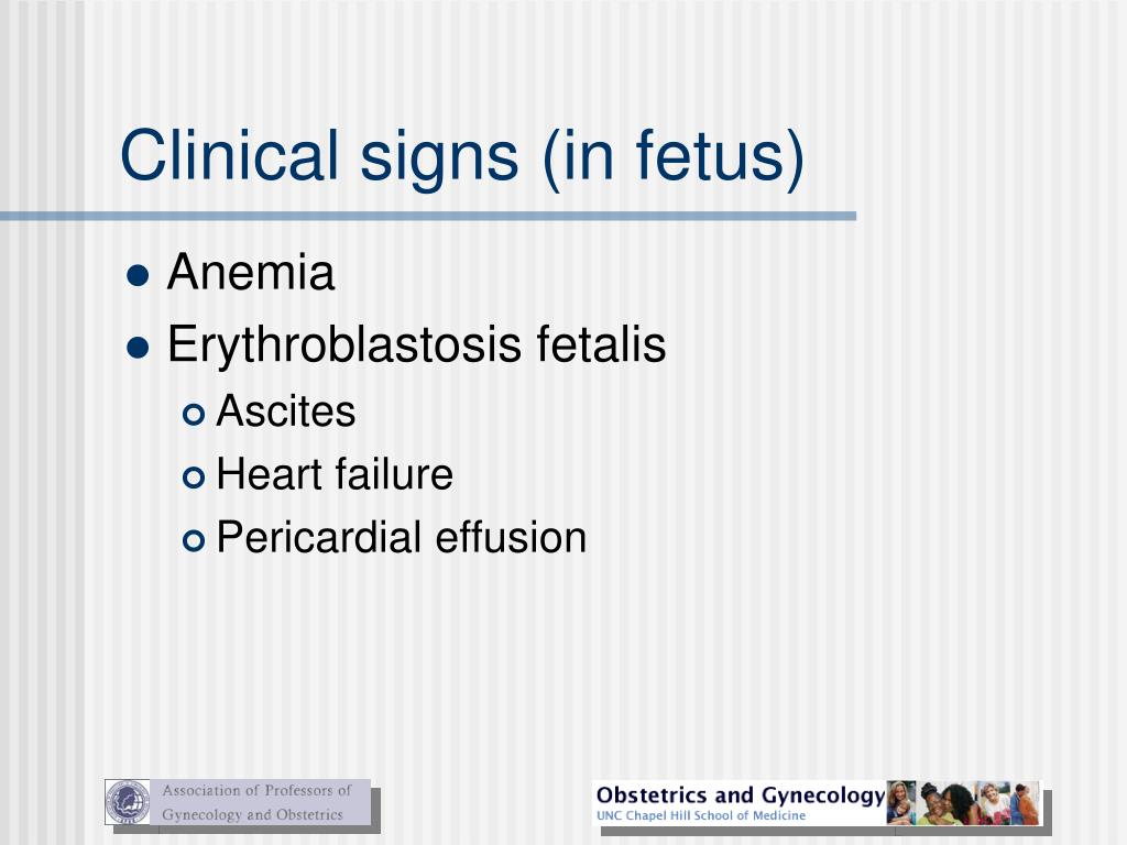Clinical signs (in fetus)