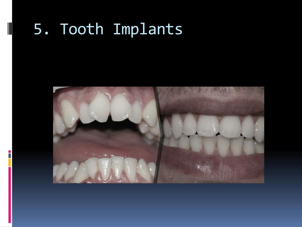 5. Tooth Implants