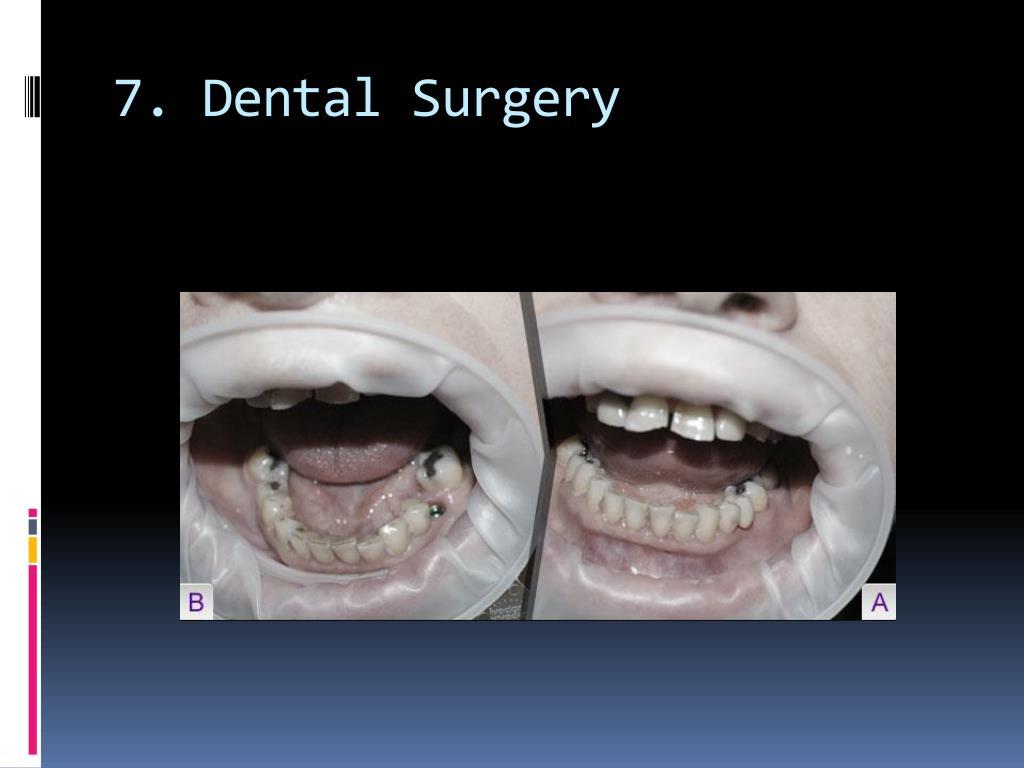 7. Dental Surgery