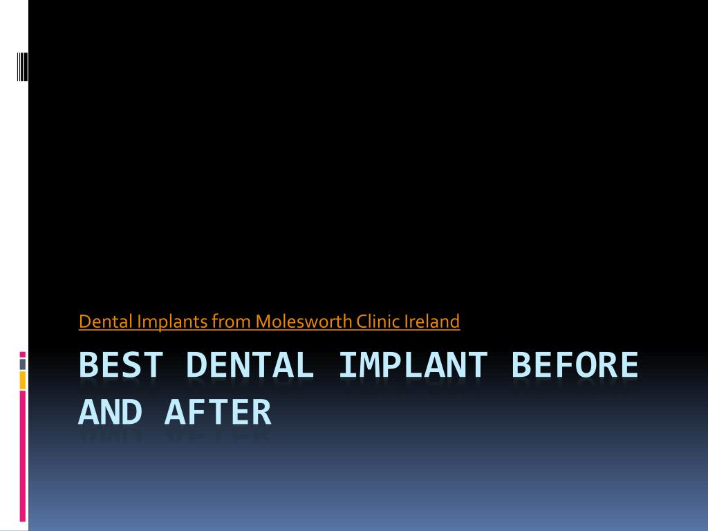 Dental Implants from