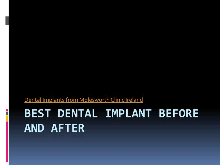 Dental implants from molesworth c linic ireland l.jpg