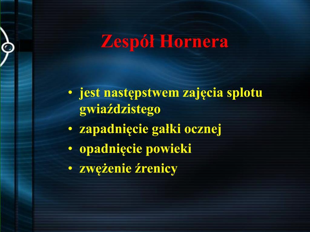 Zespół Hornera