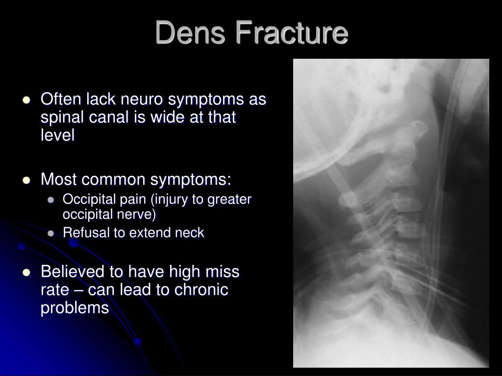 Dens Fracture