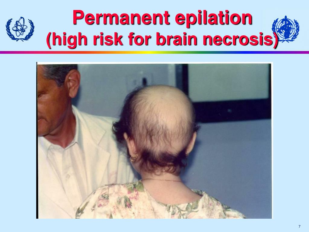 Permanent epilation