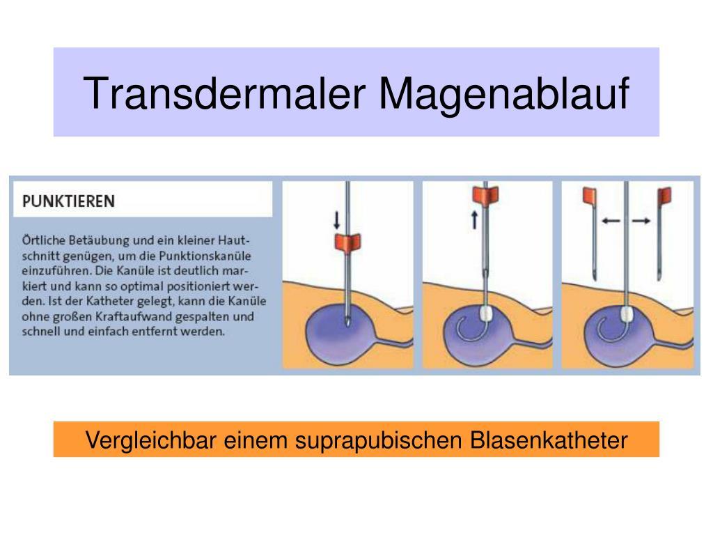 Transdermaler Magenablauf