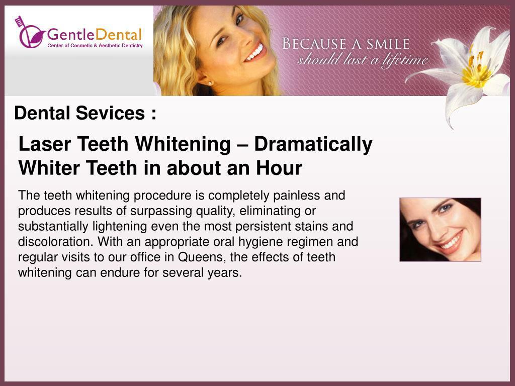 Dental Sevices :