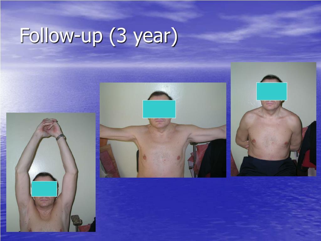 Follow-up (3 year)