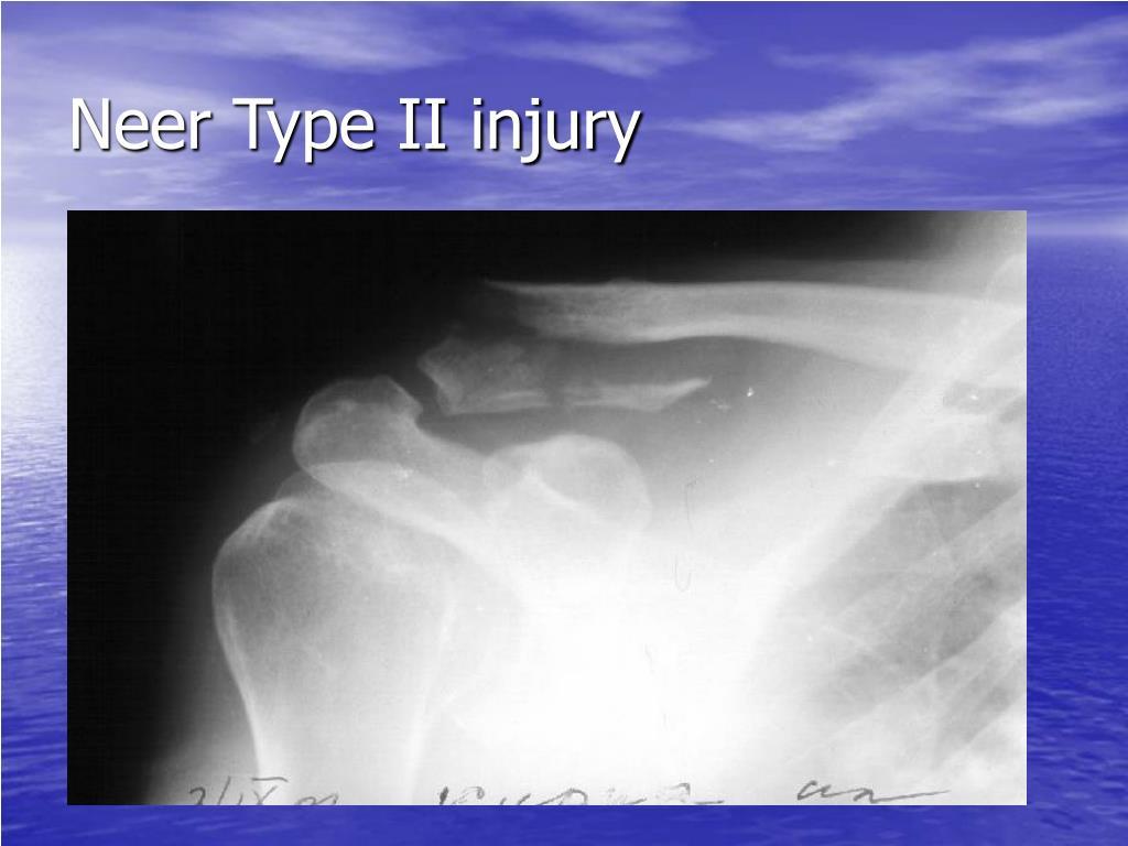 Neer Type II injury