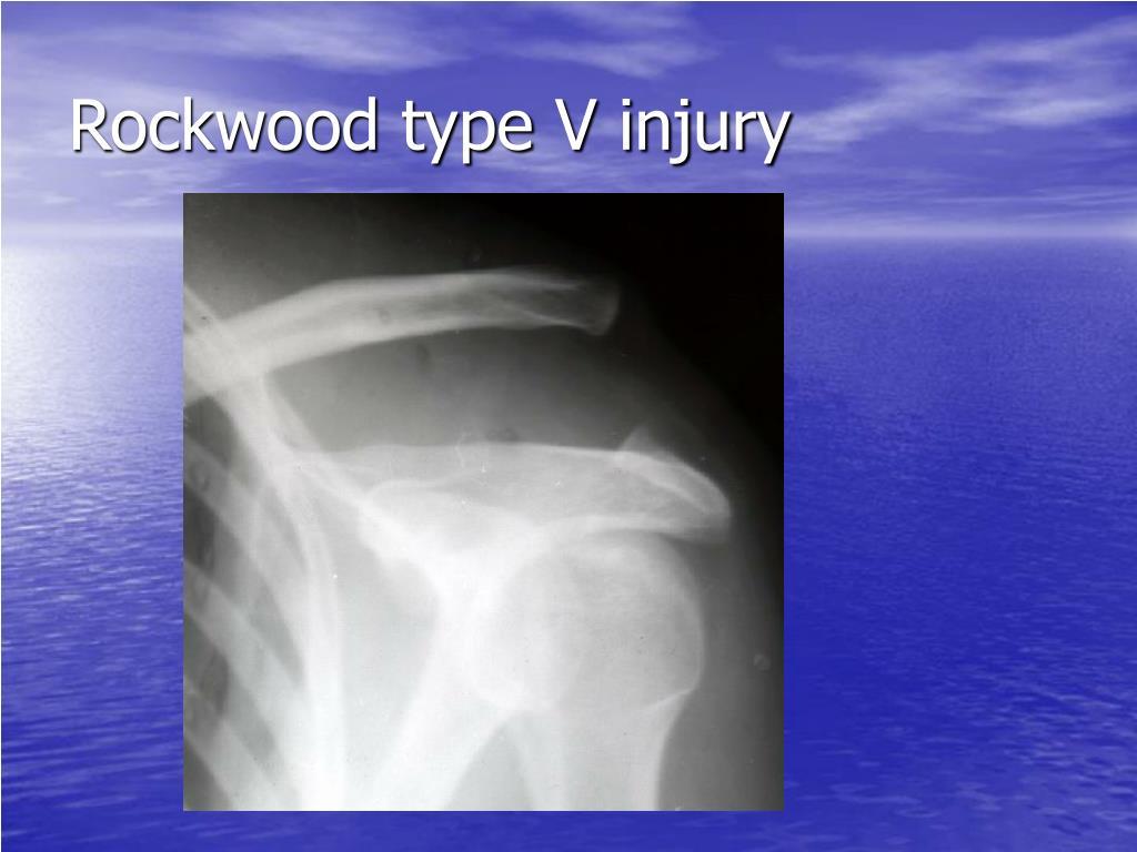 Rockwood type V injury
