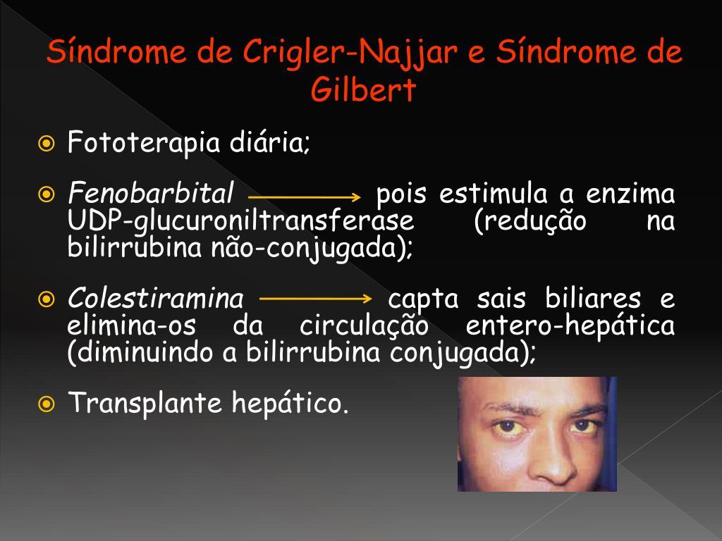Síndrome de Crigler-Najjar e Síndrome de Gilbert